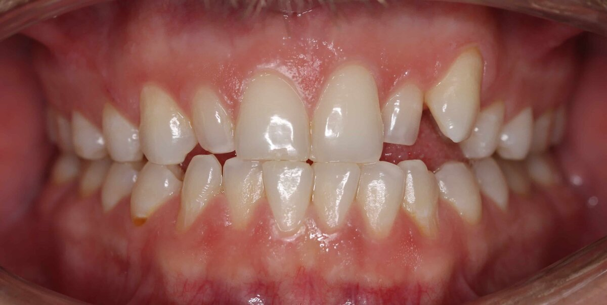 IMG_3191 before ortho_1