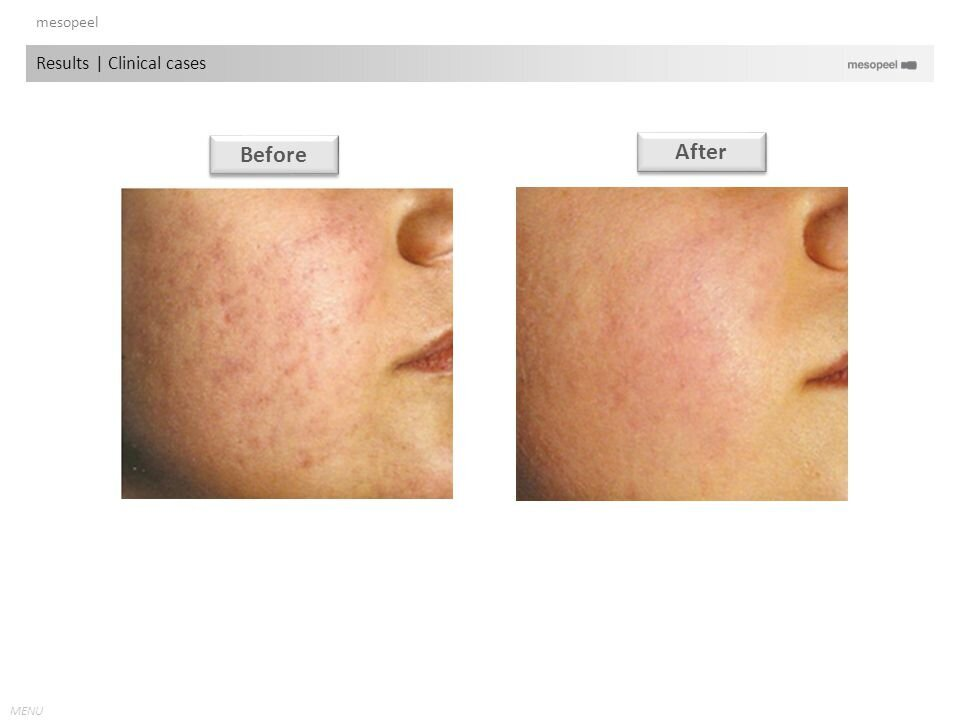 mesopeel+Results+_+Clinical+cases+Before+After