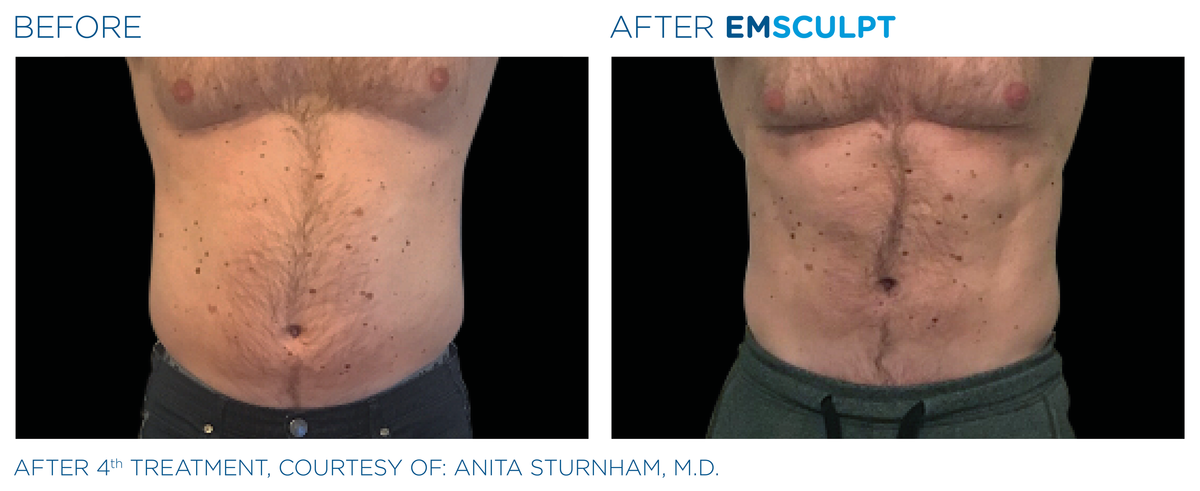 Emsculpt Before After 5