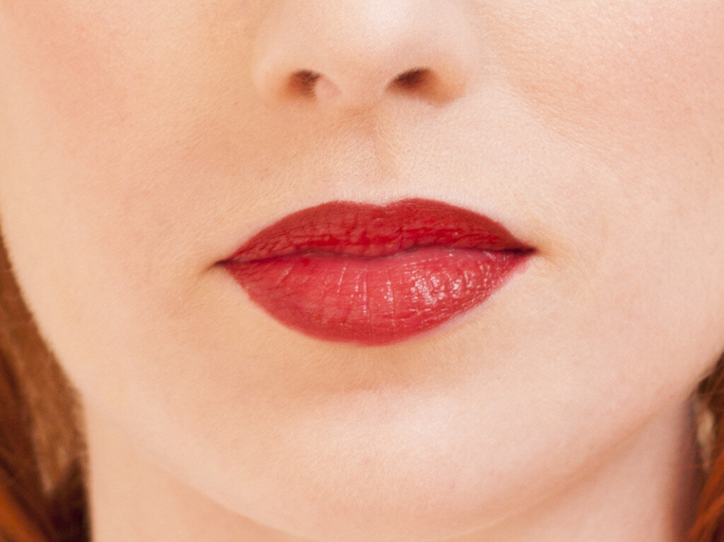 lips-before-1024x767