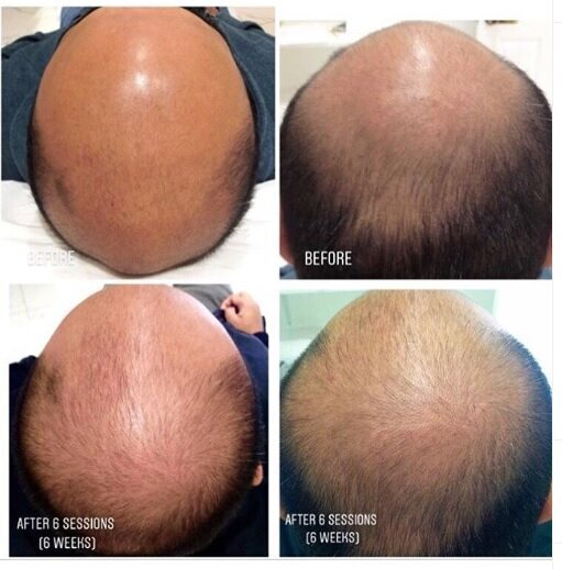 hair-loss-6-weeks-micro-needling-@the_ksclinic_aesthetics