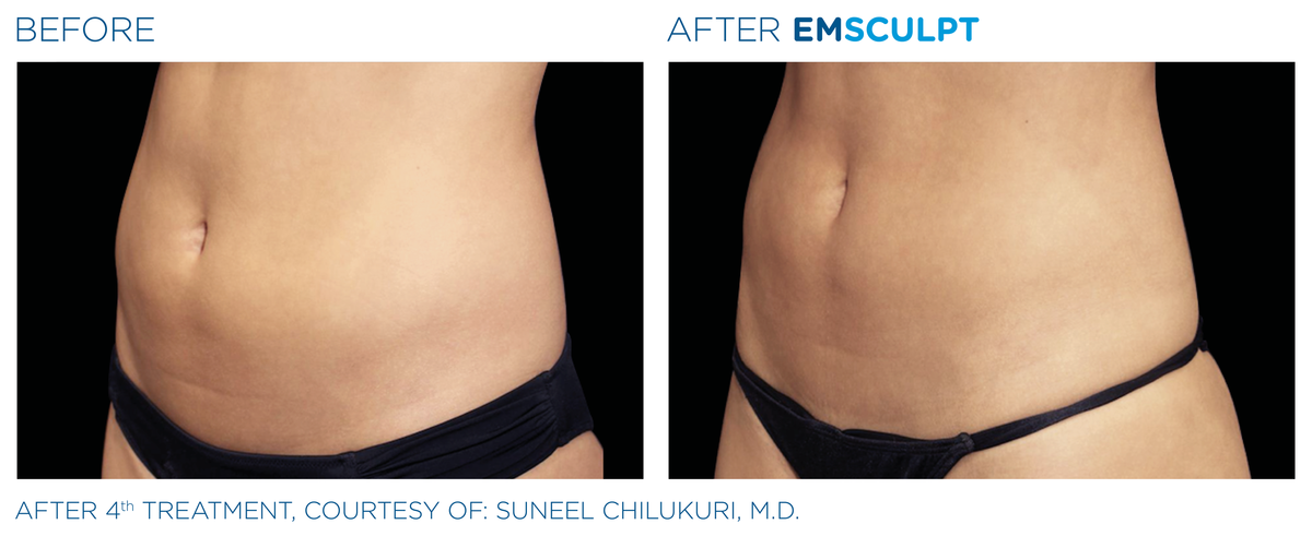 Emsculpt Before After