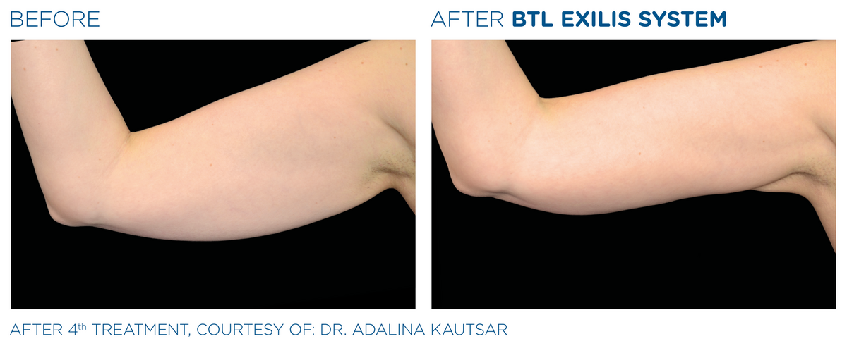 BTL_Exilis_system_PIC_Ba-card-female-arms-017_EN100