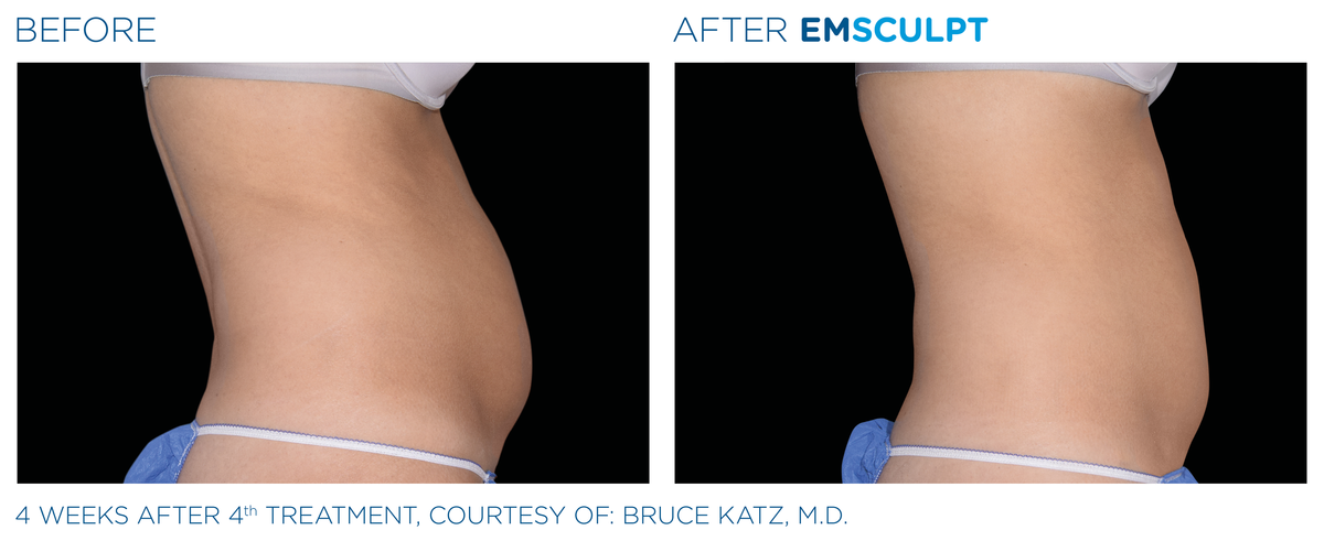 Emsculpt Before After 6