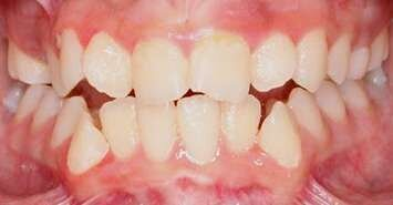 paner teeth before braces