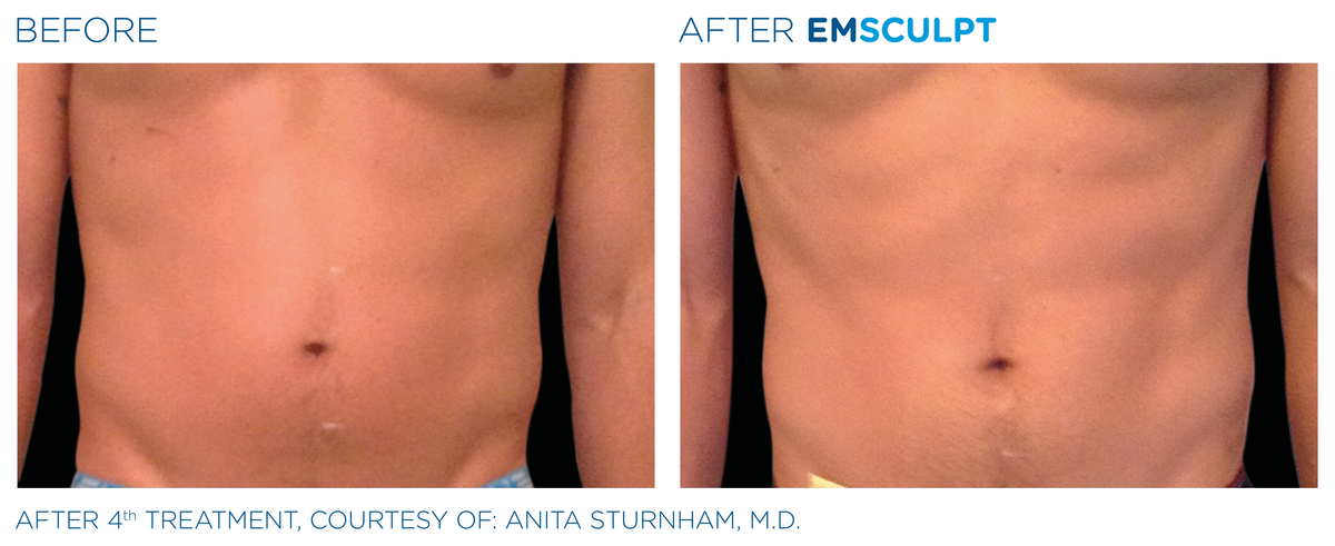 Emsculpt Before After 4