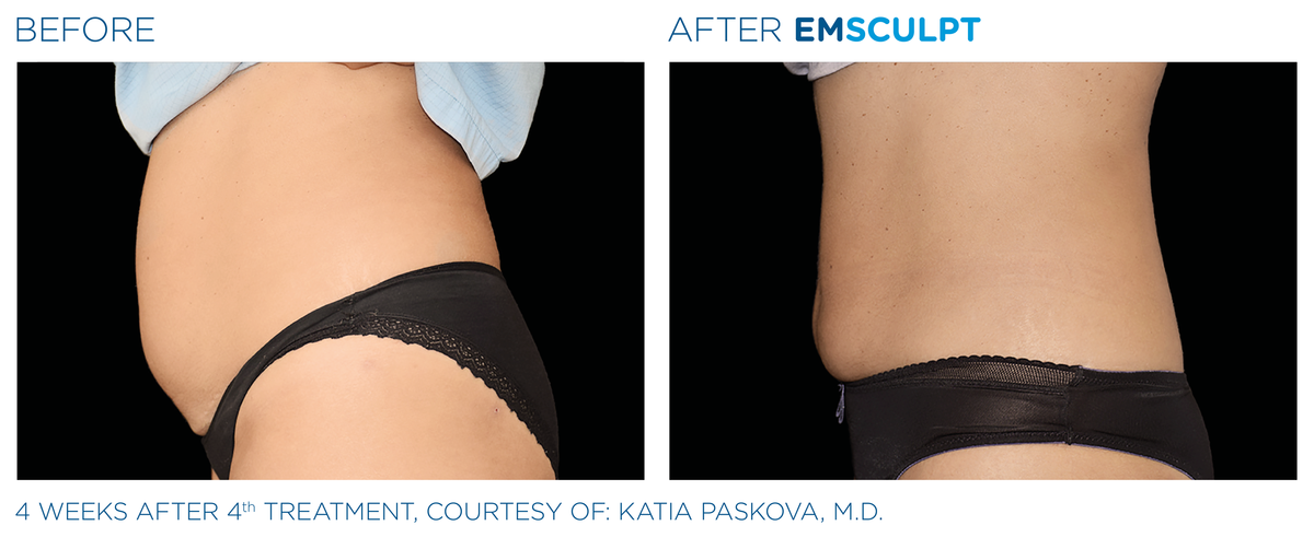 Emsculpt Before After 3