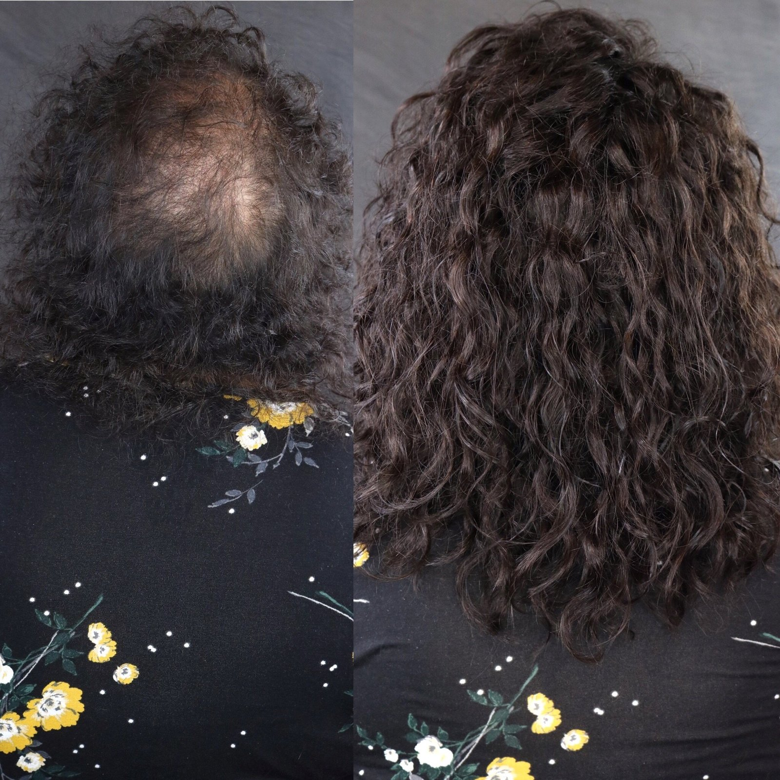 Thinning Hair Extensions - Thinning Hair