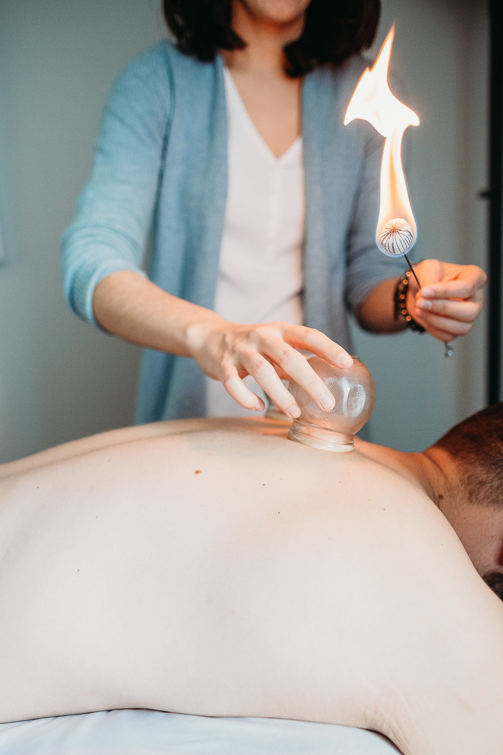 woman applies a cupping technique to a mans back during accupuncture branding images