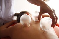 Book acupuncture, cupping and NAET online with FM Acupuncture
