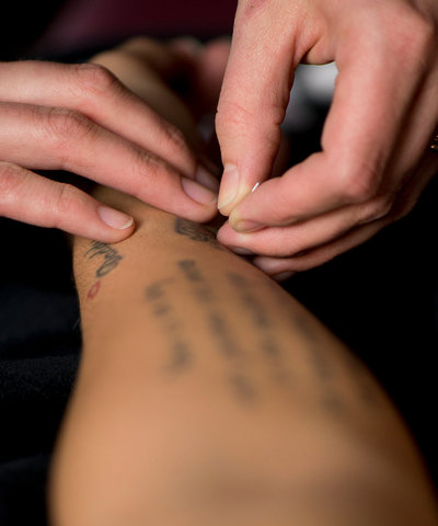 acupuncture page photo
