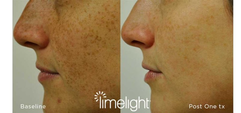 _LIMELIGHT-BEFORE-AND-AFTERS2