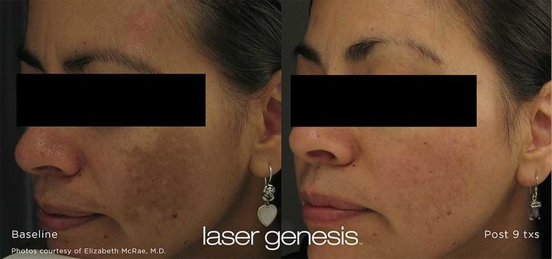 LASER-GENESIS-BEFORE-AND-AFTERS3