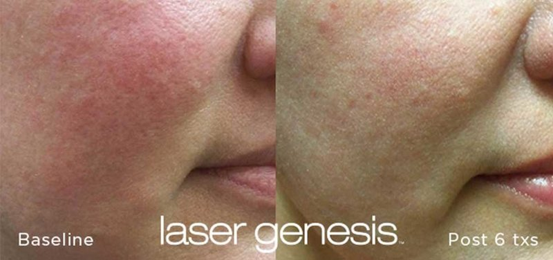 LASER-GENESIS-BEFORE-AND-AFTERS4